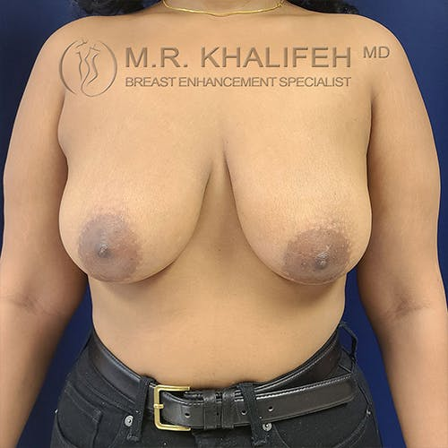 Breast Lift Gallery - Patient 13732556 - Image 1