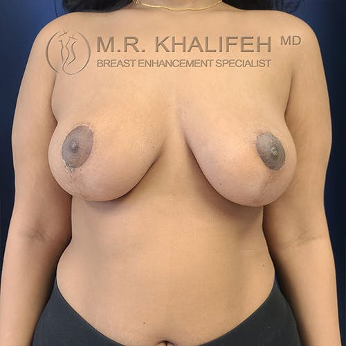 Breast Lift Gallery - Patient 13732556 - Image 2