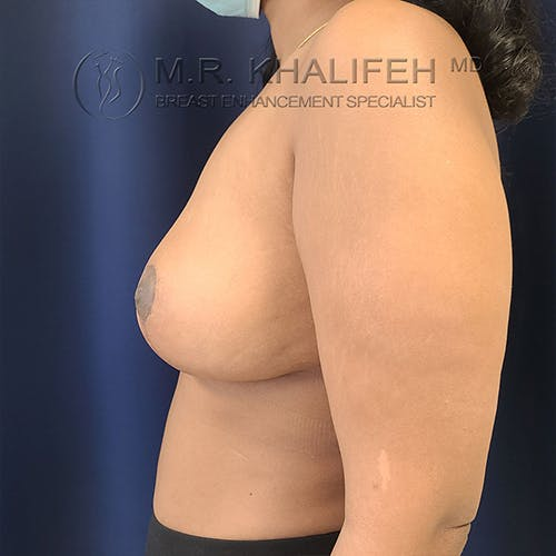 Breast Lift Gallery - Patient 13732556 - Image 6