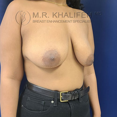 Breast Lift Gallery - Patient 13732556 - Image 7