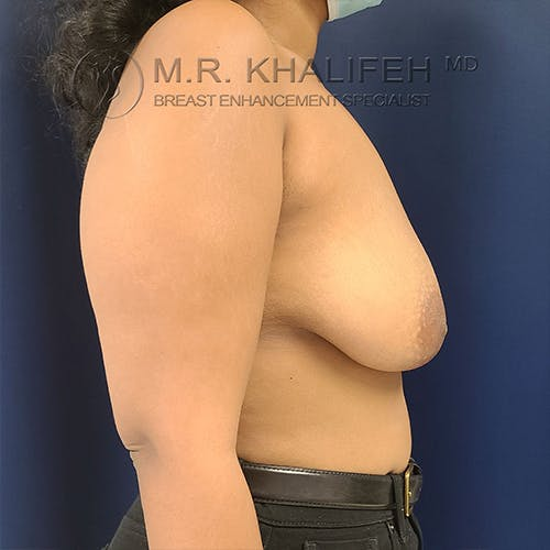 Breast Lift Gallery - Patient 13732556 - Image 9
