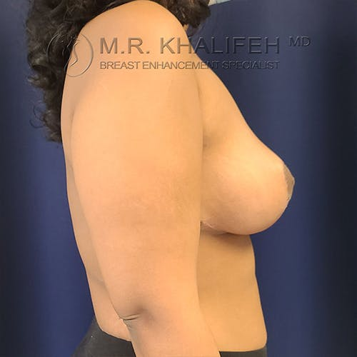 Breast Lift Gallery - Patient 13732556 - Image 10