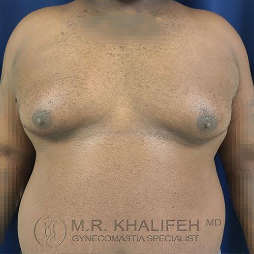 Gynecomastia Gallery - Patient 13826662 - Image 1