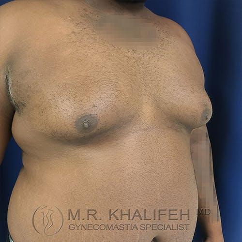 Gynecomastia Gallery - Patient 13826662 - Image 3