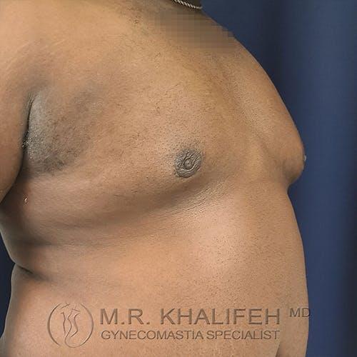 Gynecomastia Gallery - Patient 13826662 - Image 4