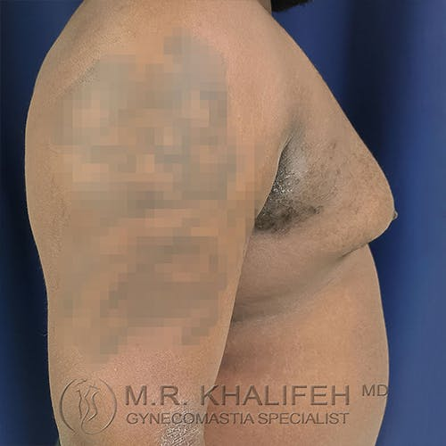 Gynecomastia Gallery - Patient 13826662 - Image 5
