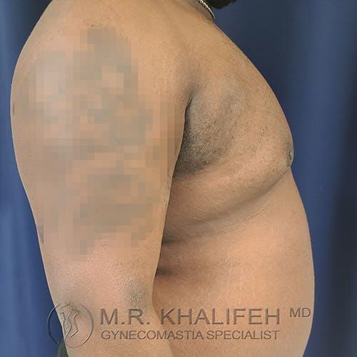 Gynecomastia Gallery - Patient 13826662 - Image 6