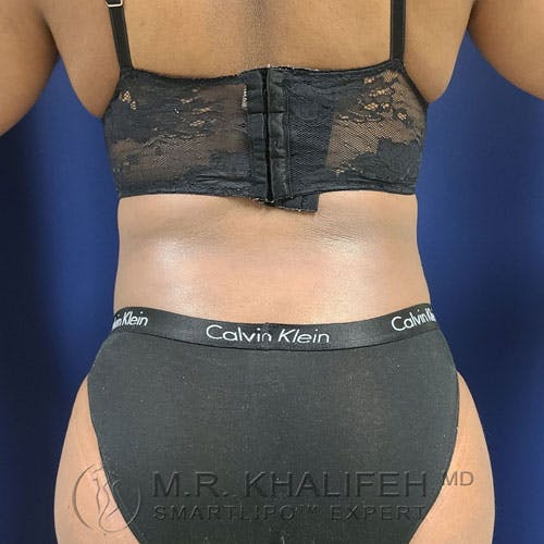 Flank-Lower Back Liposuction Gallery - Patient 14779359 - Image 2