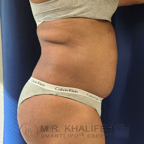 Flank-Lower Back Liposuction Gallery - Patient 14779359 - Image 5