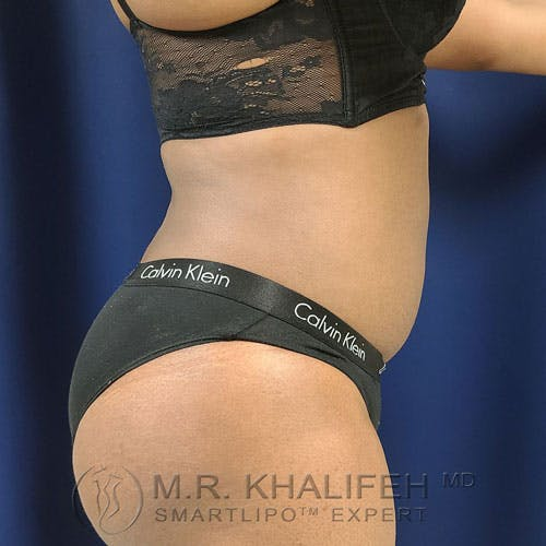 Flank-Lower Back Liposuction Gallery - Patient 14779359 - Image 6