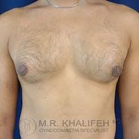 Gynecomastia Gallery - Patient 17924000 - Image 1