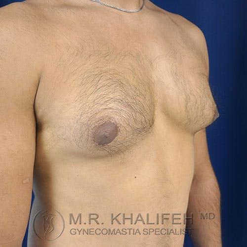 Gynecomastia Gallery - Patient 17924000 - Image 3
