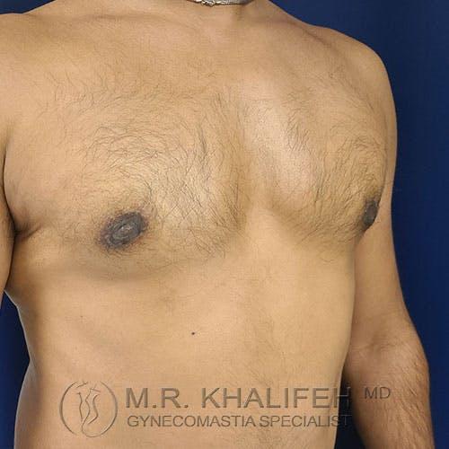Gynecomastia Gallery - Patient 17924000 - Image 4