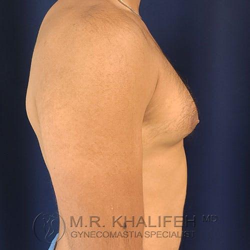 Gynecomastia Gallery - Patient 17924000 - Image 5