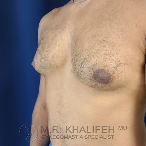 Gynecomastia Gallery - Patient 17924000 - Image 7