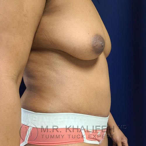 Tummy Tuck Gallery - Patient 17924366 - Image 4