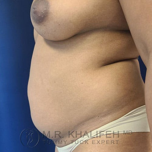 Tummy Tuck Gallery - Patient 17924366 - Image 5
