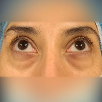 Eyelid Surgery  Gallery - Patient 18426909 - Image 1