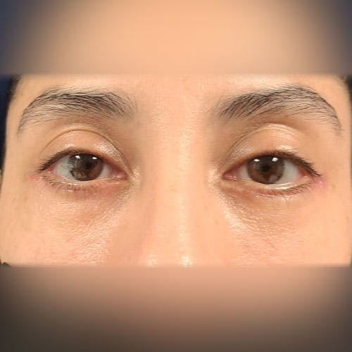 Eyelid Surgery  Gallery - Patient 18426909 - Image 2