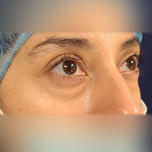 Eyelid Surgery  Gallery - Patient 18426909 - Image 3
