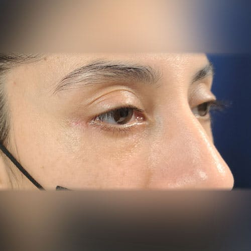 Eyelid Surgery  Gallery - Patient 18426909 - Image 4