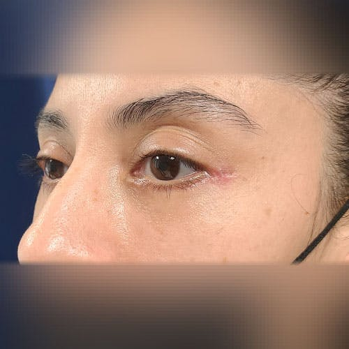 Eyelid Surgery  Gallery - Patient 18426909 - Image 6