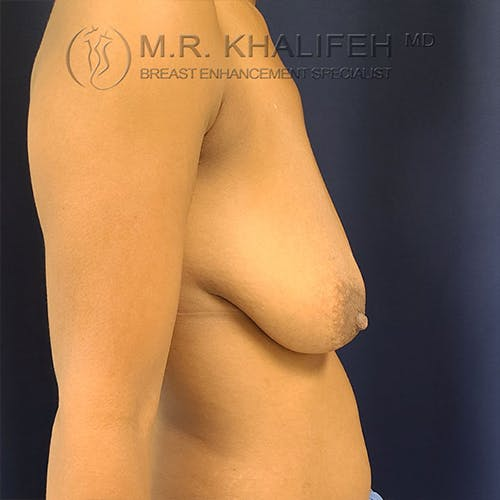 Breast Lift Gallery - Patient 18426911 - Image 5