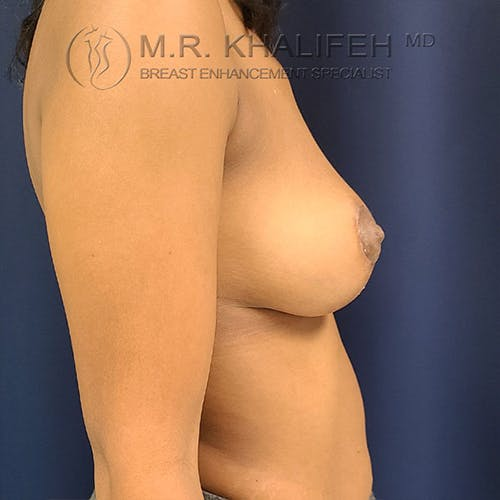 Breast Lift Gallery - Patient 18426911 - Image 6