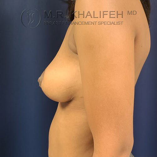 Breast Lift Gallery - Patient 18426911 - Image 8