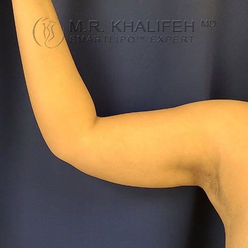 Arm Liposuction Gallery - Patient 21143636 - Image 4
