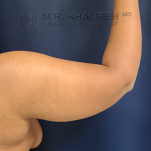 Arm Liposuction Gallery - Patient 21143636 - Image 5