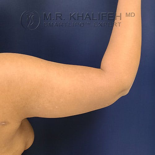 Arm Liposuction Gallery - Patient 21143636 - Image 6