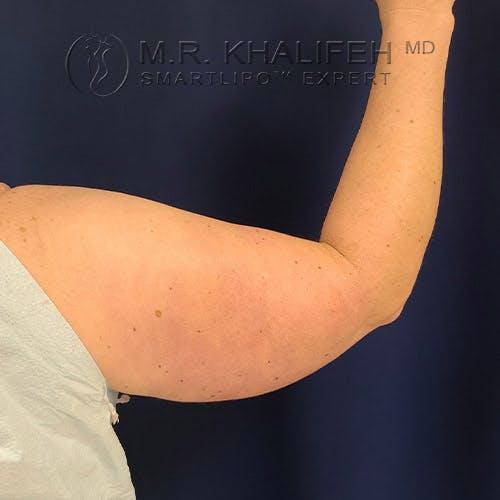 Arm Liposuction Gallery - Patient 22113626 - Image 5