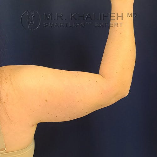 Arm Liposuction Gallery - Patient 22113626 - Image 6