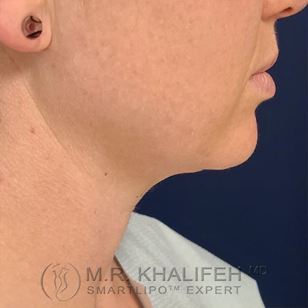 Chin and Neck Liposuction Gallery - Patient 24071373 - Image 1
