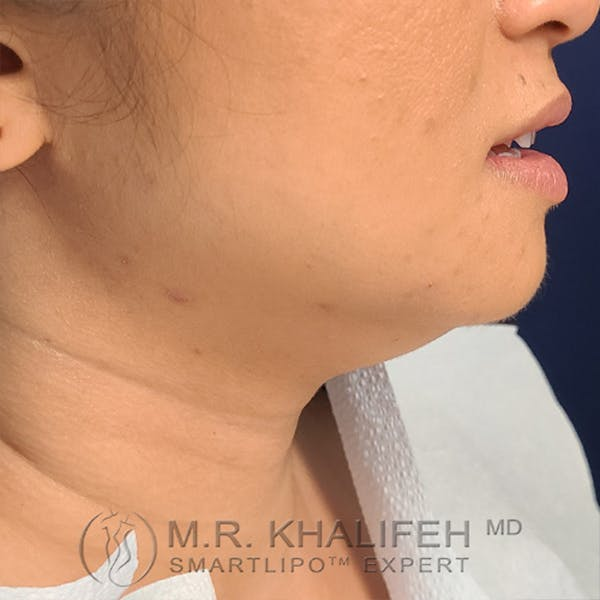 Chin and Neck Liposuction Gallery - Patient 24071374 - Image 1