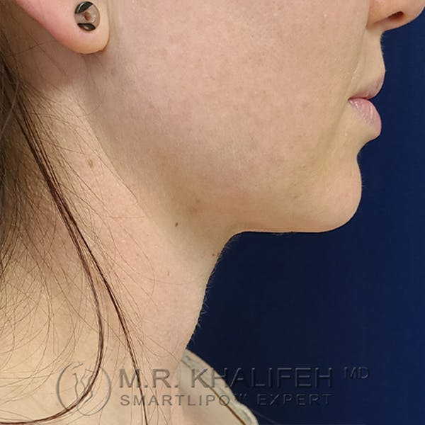 Chin and Neck Liposuction Gallery - Patient 24071373 - Image 2