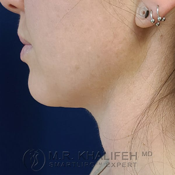 Chin and Neck Liposuction Gallery - Patient 24071373 - Image 4