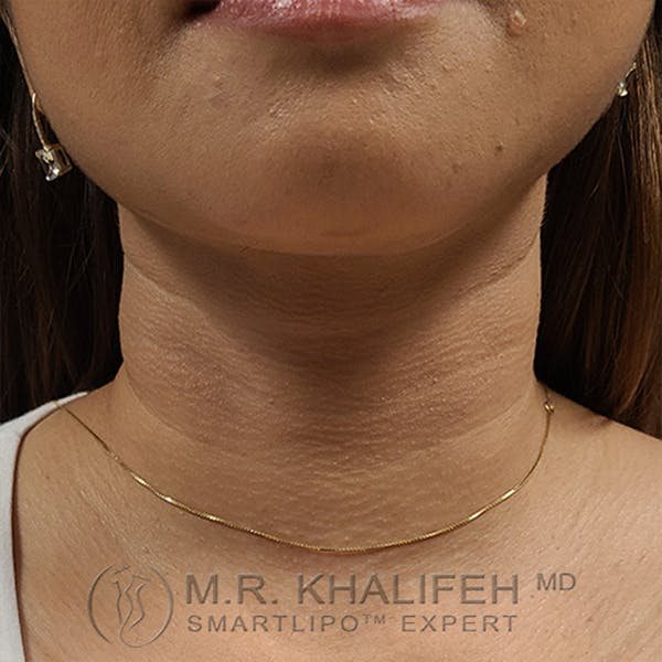 Chin and Neck Liposuction Gallery - Patient 24071374 - Image 6