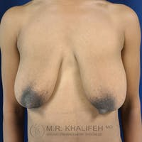 Breast Lift Gallery - Patient 24090619 - Image 1
