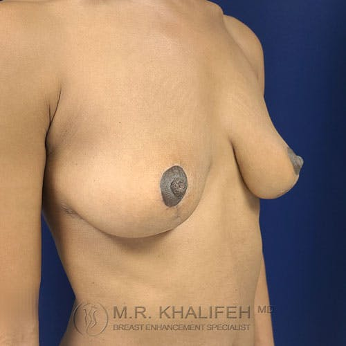 Breast Lift Gallery - Patient 24090619 - Image 8