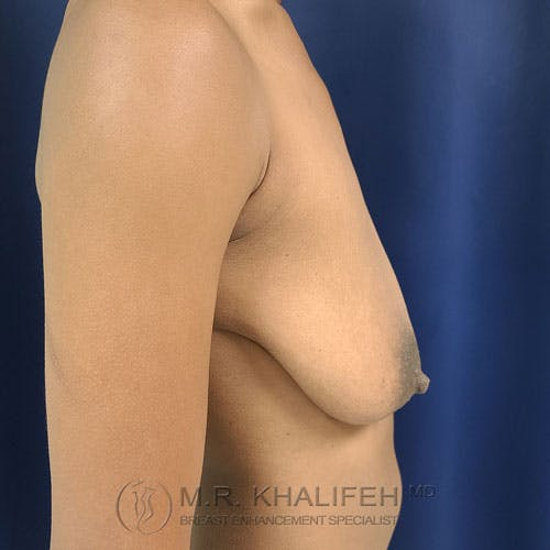 Breast Lift Gallery - Patient 24090619 - Image 9