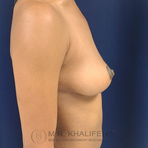 Breast Lift Gallery - Patient 24090619 - Image 10