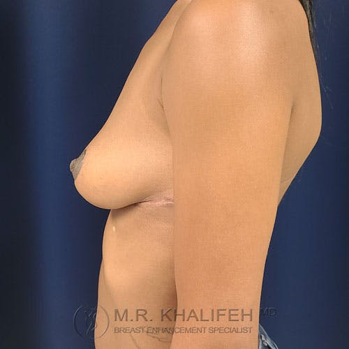 Breast Lift Gallery - Patient 24090619 - Image 6
