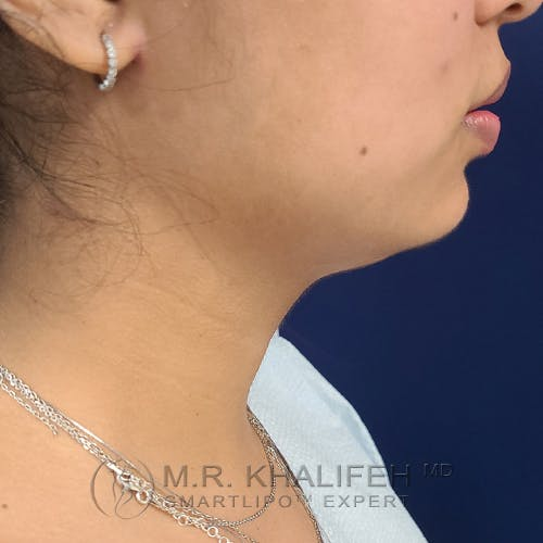 Chin and Neck Liposuction Gallery - Patient 25853396 - Image 1