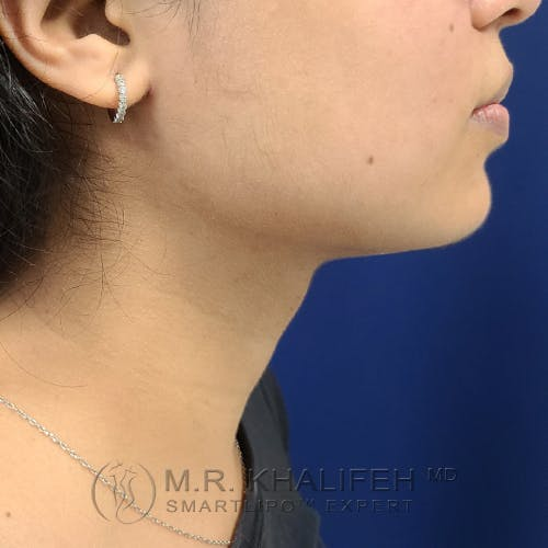 Chin and Neck Liposuction Gallery - Patient 25853396 - Image 2