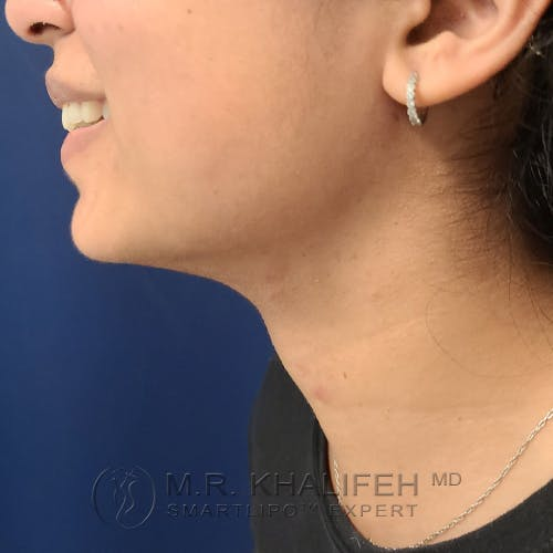 Chin and Neck Liposuction Gallery - Patient 25853396 - Image 4