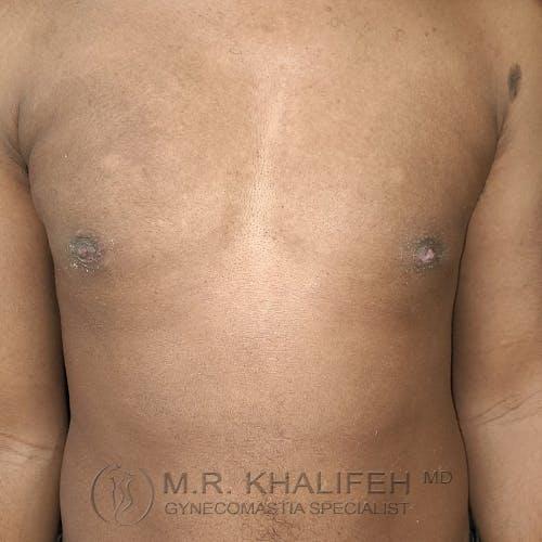 Gynecomastia Gallery - Patient 28762698 - Image 2