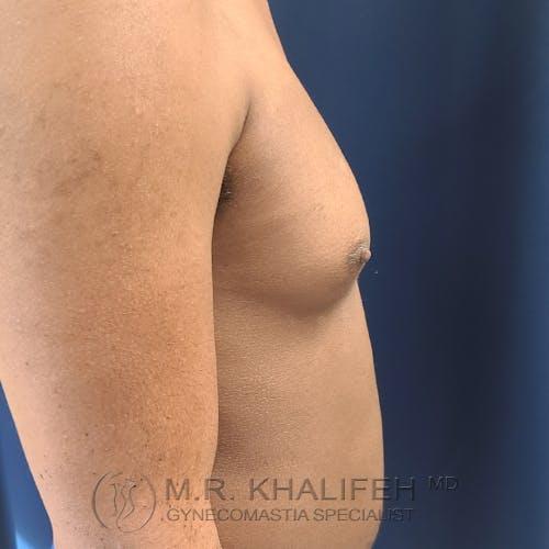 Gynecomastia Gallery - Patient 28762698 - Image 5