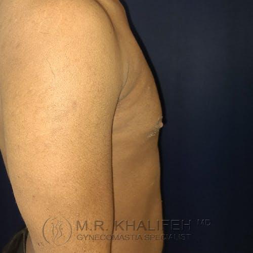 Gynecomastia Gallery - Patient 28762698 - Image 6